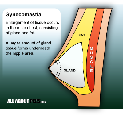 Gynecomastia and gland tissue in the male chest